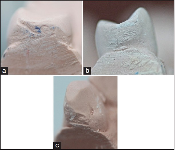 Figure 2: Types of damage to the teeth; (a) nicks, (b) abrasion (c) both