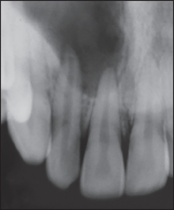 Figure 1: Radiolucent lesion associated with roots of 11 and 12