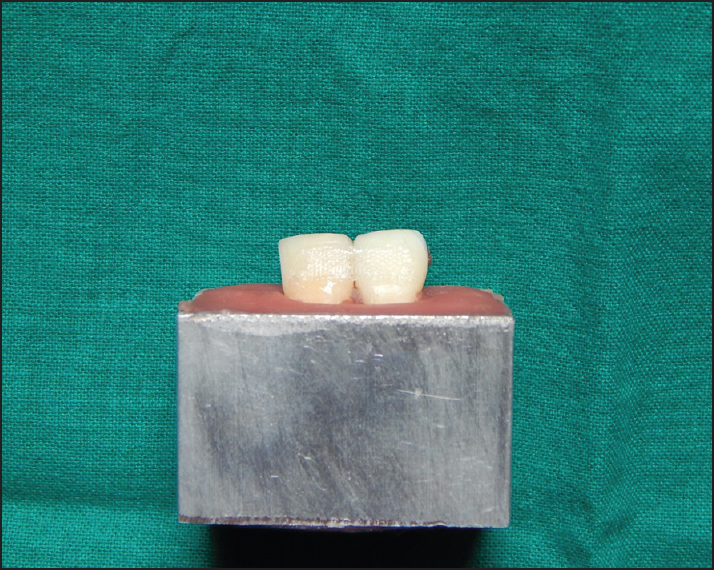 Figure 2: Splinting of teeth using ribbond