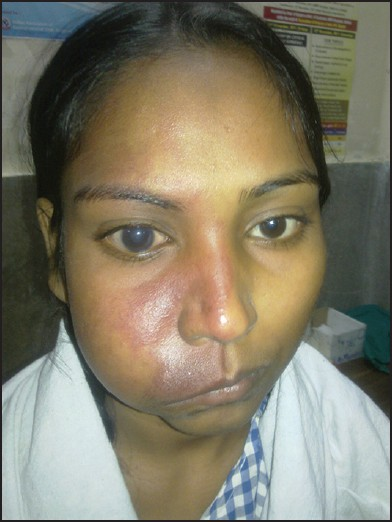 Figure 1: Port-wine stain on the right side of the face